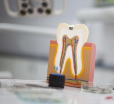 Model of a healthy tooth