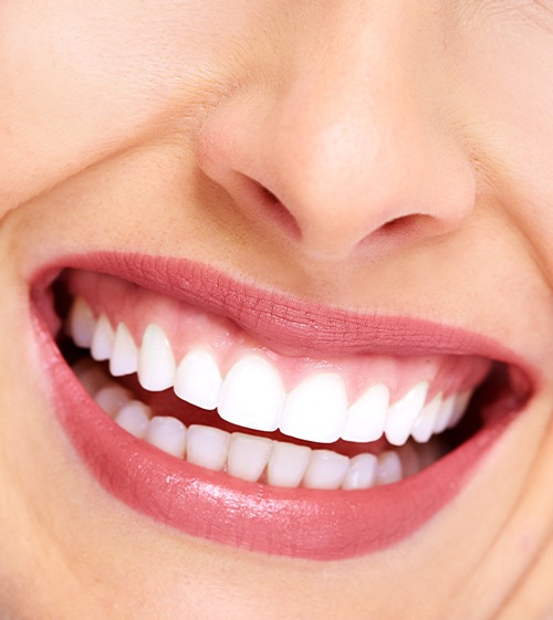 Healthy smile after fluoride treatment