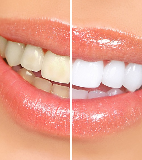 before-and-after comparison of teeth whitening in North Grafton