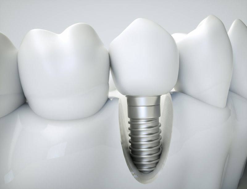 a single tooth dental implant in North Grafton located on the lower arch